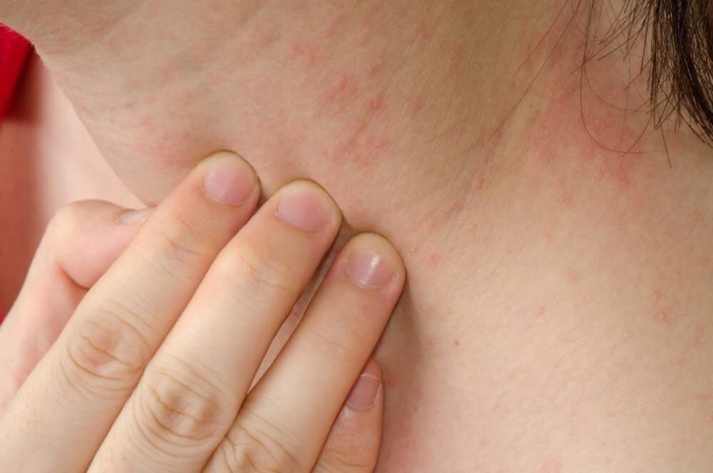 Neurodermitis-Haut