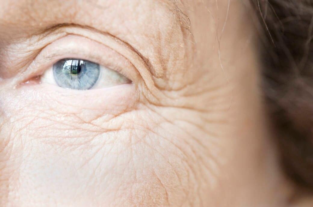 70 bis 80 Prozent der Hautalterung entsteht durch Umwelteinflüsse