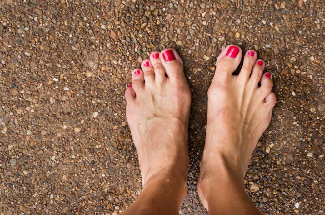 Hallux valgus: Fußfehlstellungen wegen falscher Schuhe WELT