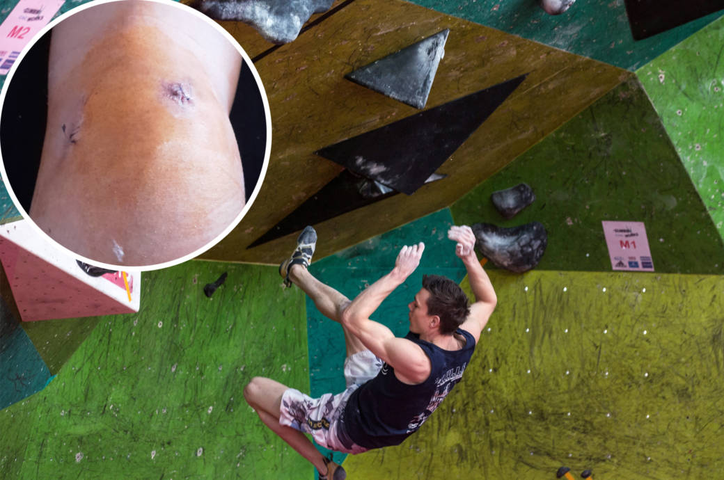 Jörns Knie und ein Sturz beim Bouldern