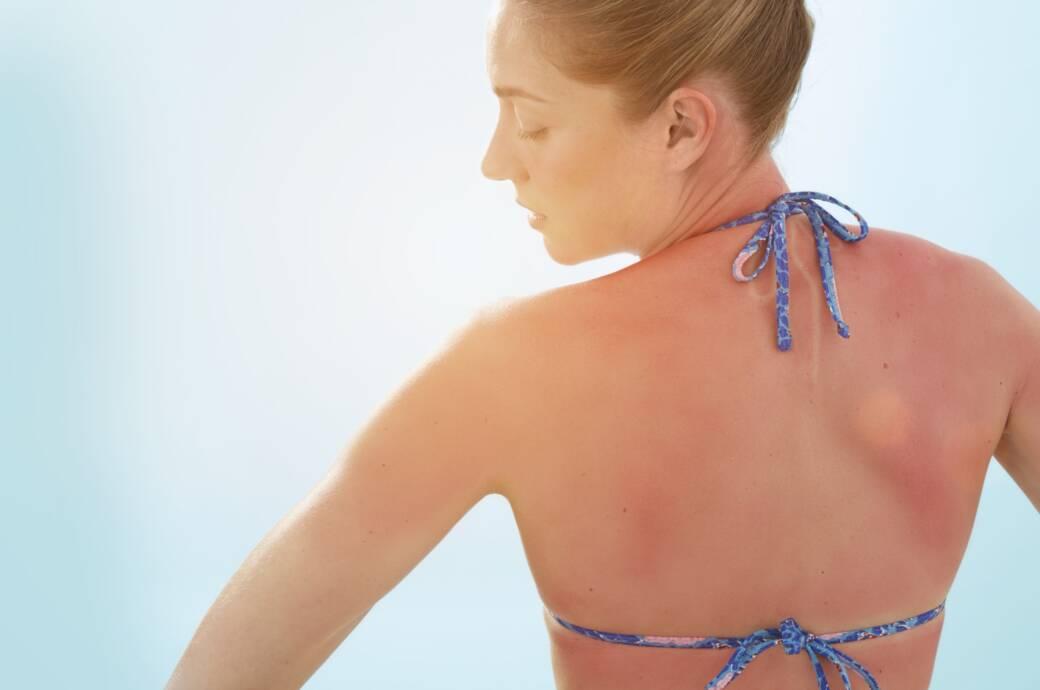 Frau mit Sonnenbrand