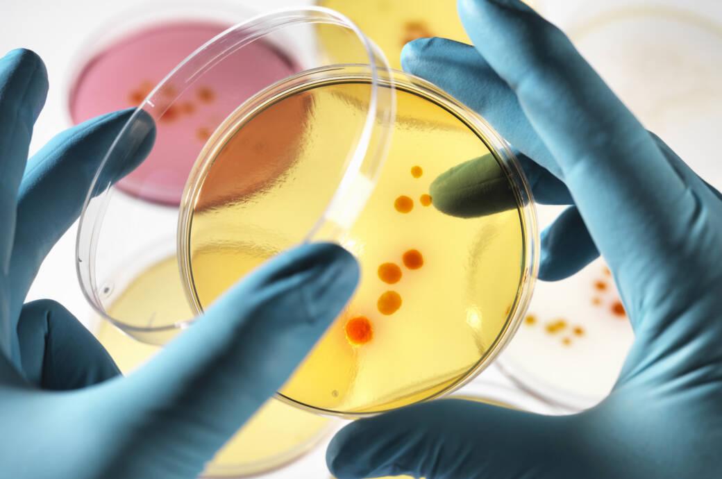Untersuchung von Bakterien in Petrischale