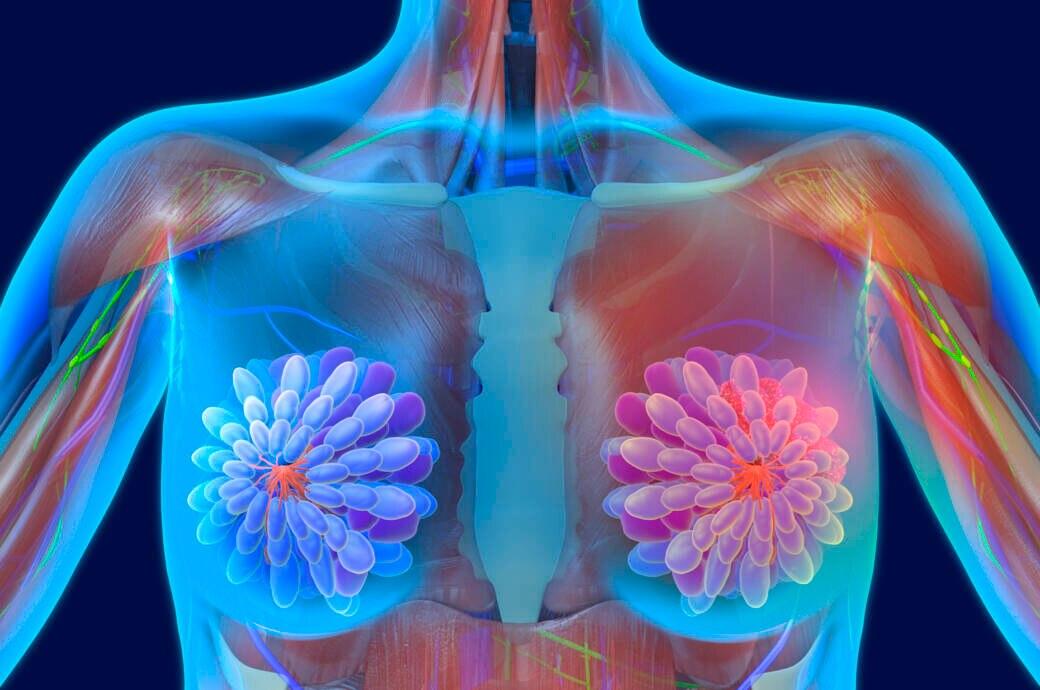 Biomarker-Test bei Brustkrebs wird Kassenleistung