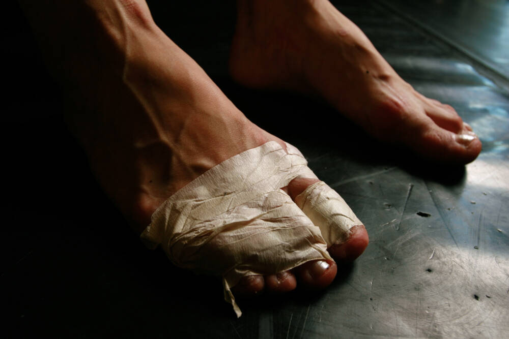 Ballerina mit bandagiertem Fuß