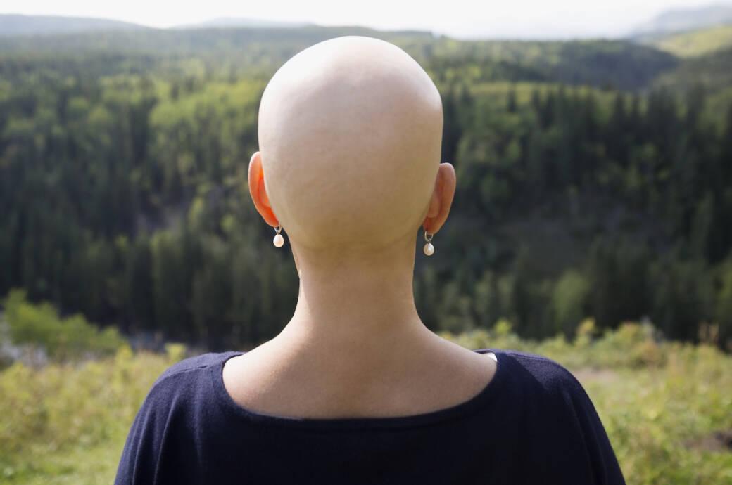 Eine Krebspatientin ohne Kopfhaare schaut in die Ferne