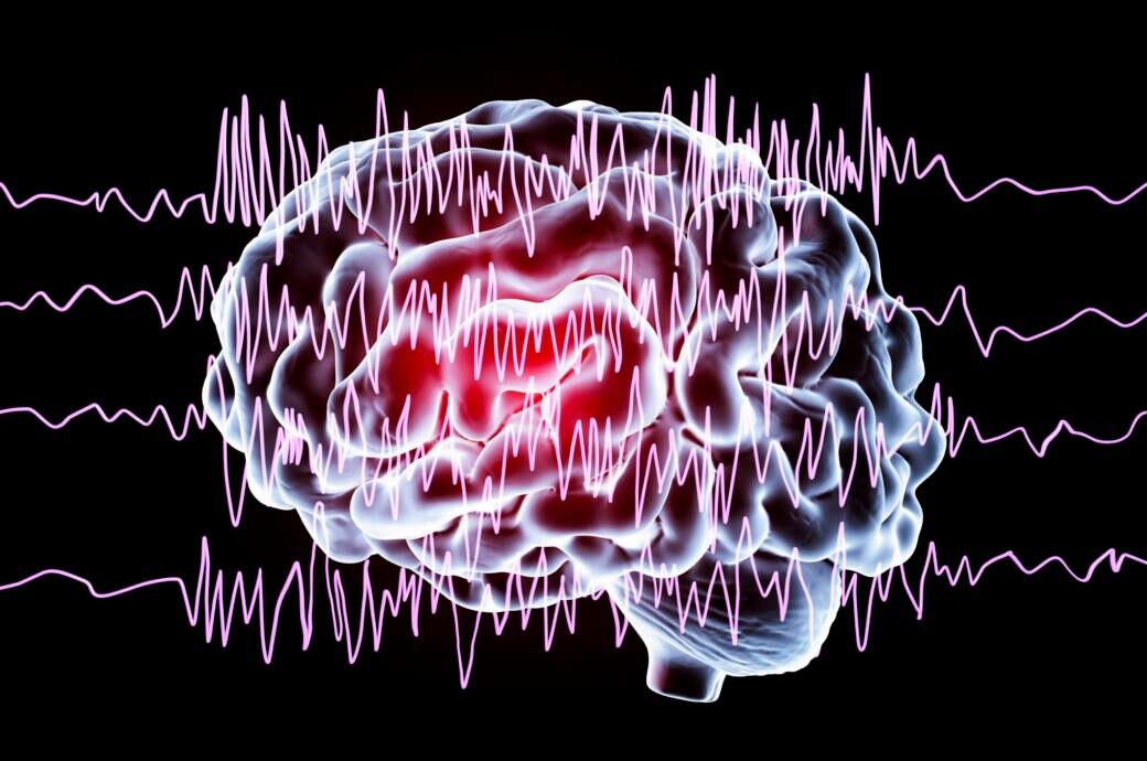 Schlafmangel kann Epilepsie-Anfall auslösen