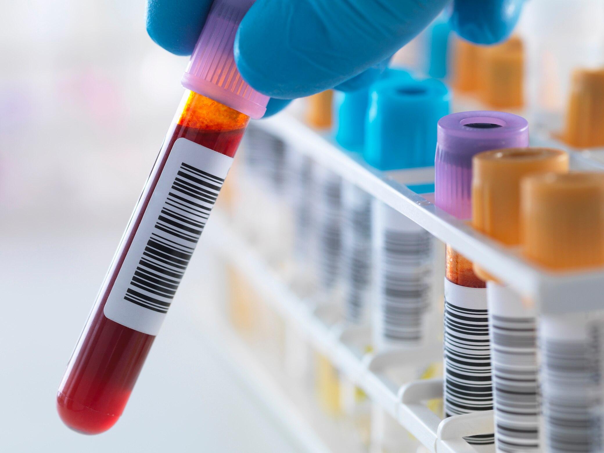 Diese Blutwerte könnten auf ein erhöhtes Sterberisiko hindeuten