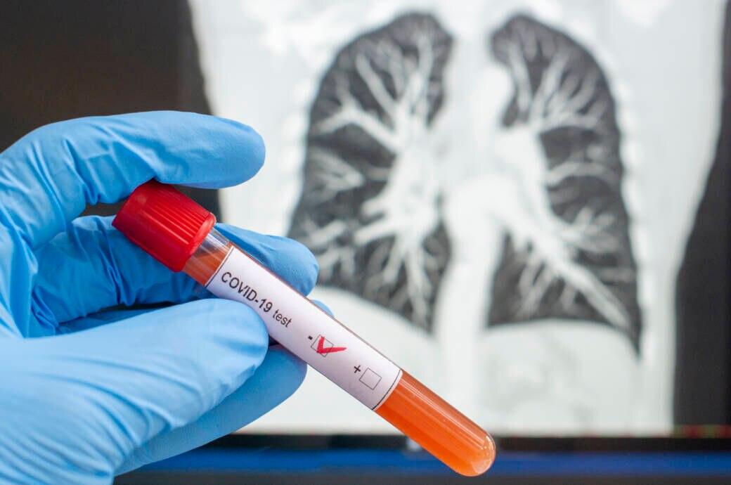 Weltweit wird nach Corona-Medikamenten geforscht. Prof. Drosten & Kollegen haben mit Spermidin einen Wirkstoff im Visier, den es schon jetzt in Apotheken gibt.