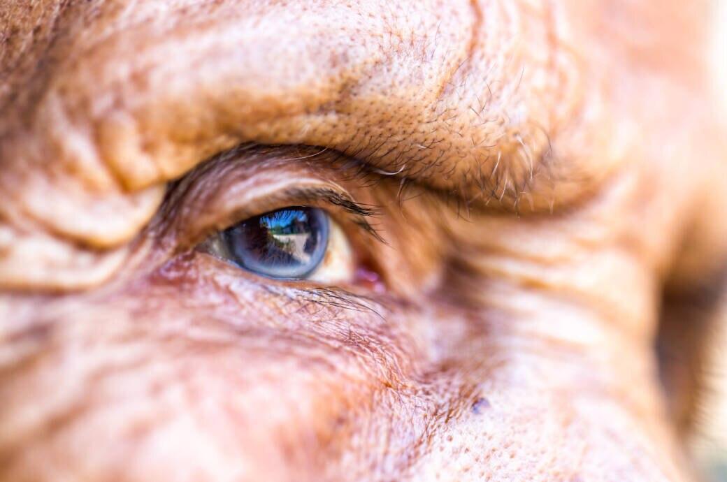 Beim Grauen Star trübt sich die Linse – eine typische Augenerkrankung im Alter