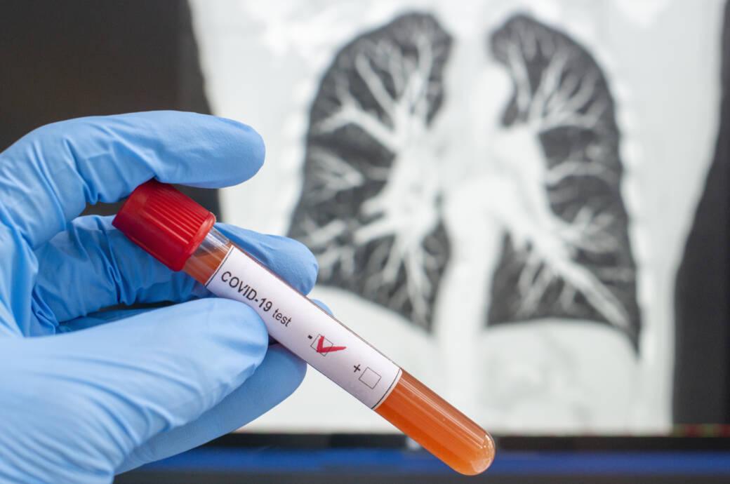 Diabetologen haben den Verdacht geäußert, dass Covid-19 Diabetes auch auslösen könnte