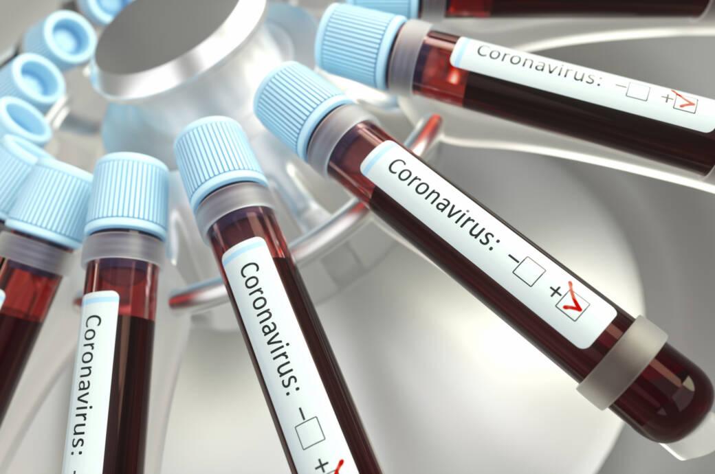 Die geplanteCorona-Impfstoffstudie lehnen immer mehr Biotech-Firmen ab