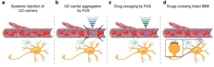 Ultraschall Medikamente: Illustration der Methode, mit Ultraschall Medikamente ins Gehirn zu bringen