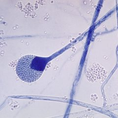 Pilzinfektion Covid-19: Pilzsporen eines Mucor sp. Pilzes